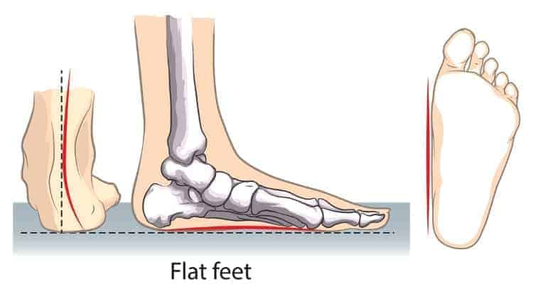 5 Best Shoes for Nurses with Flat Feet