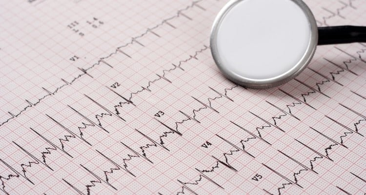 10 Best EKG Books for Nurses and Nursing Students